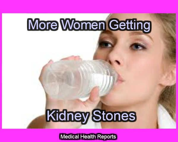 The best soda to fight kidney stones. Women's risk is on ...