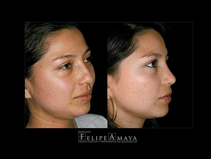 Cirugía de nariz, resultados armónicos y naturales www.felipeamaya.com/cirugia-nariz #InstitutoFelipeAmaya #CambiaTuFotodePerfil