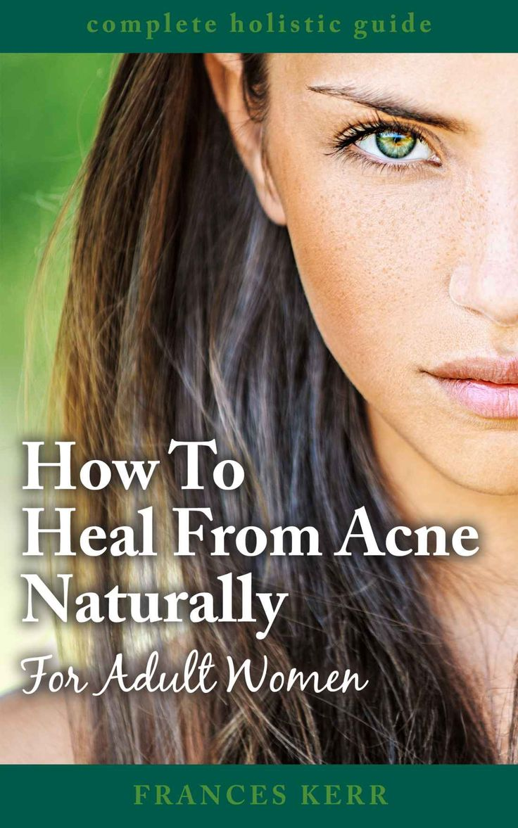 How to heal from acne naturally for adult