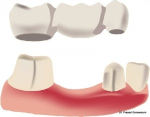 Dental bridges are used to replace a gap between teeth. The bridge is usually made up of crowns on the teeth on the sides of the gap (abutment) to anchor the empty space that teeth are put in between.  #dental_bridge  http://mynapervilledentist.com/our-dental-services/cosmetic-dentistry/porcelain-dental-bridge/