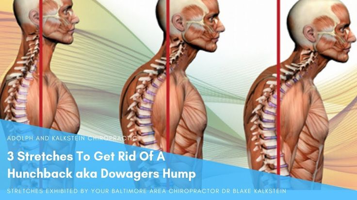how to get rid of dowager's hump with a sock