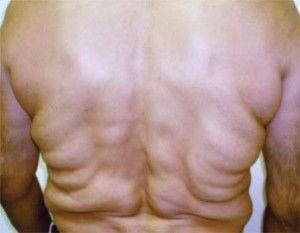 Dercums-disease Top 10 most painful diseases