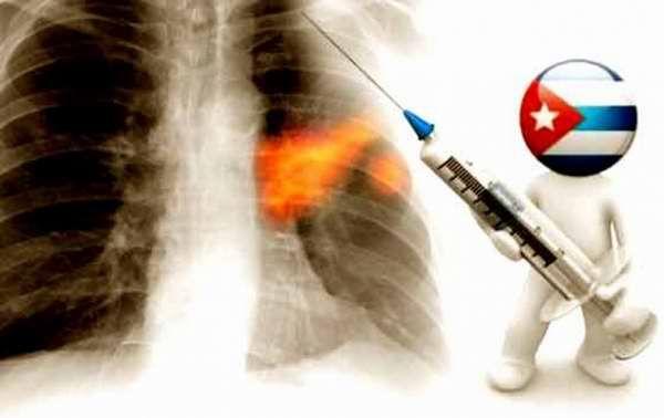 LA NOTICIA DEL AÑO: #Cuba podría haber encontrado la cura definitiva contra el #cáncer