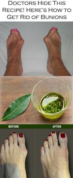 How to get rid of bunions.