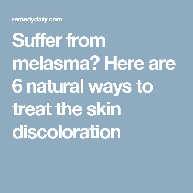 Natural Ways To Treat Melasma