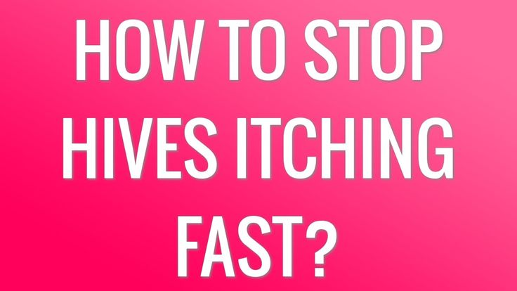 how to stop my bum from itching