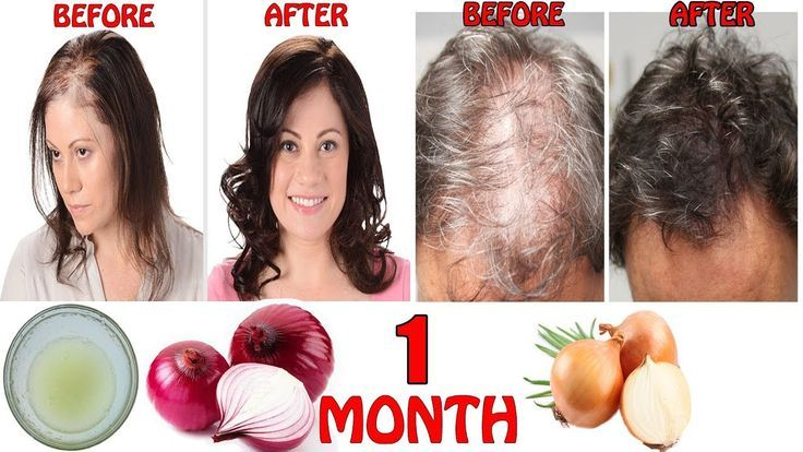 HOW TO REGROW HAIR FASTER LONG & THICK | ONION JUICE FOR HAIR REGROWTH &amp