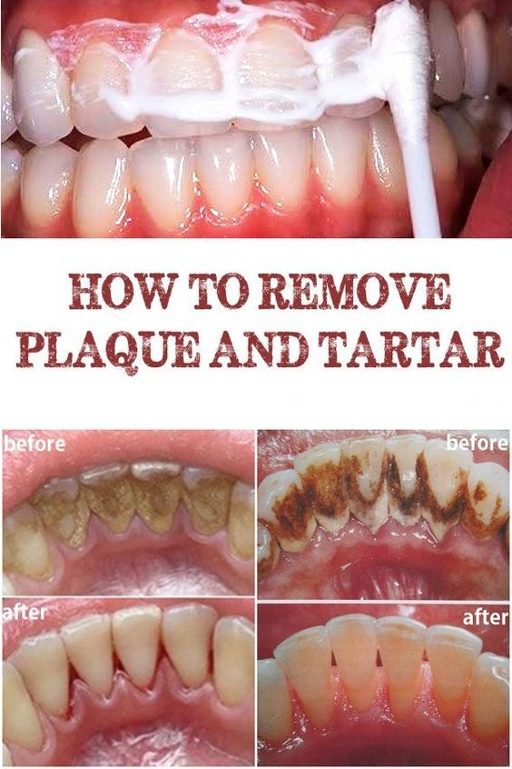 Natural Ways To Get Rid Of Plaque