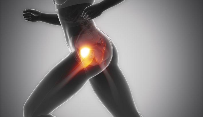 Pijn in de heupen kan verschillende oorzaken hebben, maar wordt in veel gevallen veroorzaakt door een slijmbeursontsteking van de heup. In dit artikel vind je 5 tips m.b.t. heuppijn & heupklachten door toedoen van een slijmbeursontsteking van de heup. Alles over houding, overbelasting, behandeling, medicijnen, operatie & revalidatie van het heup-gewricht