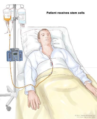 A stem cell (blood or marrow) transplant is the infusion, or injection, of healthy stem cells into your body to replace damaged or diseased stem cells. A stem cell transplant may be necessary if yo…