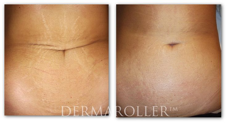 Lessen stretch mark. Derma Roller micro needling before and after treatment. http://www.amazon.com/Micro-Needle-Roller-Micro-Needles-Dermaroller/dp/B00GW1HKHW/?keywords=derma+roller