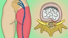 Nerves extend from your brain and spinal cord throughout your body, sending vital messages. A pinched nerve can occur when a nerve is compressed or squeezed by a herniated disc in the spinal cord, a ligament, muscle or cartilage. This pressure causes damage or inflammation to the nerve that can result in pain, muscle weakness, …