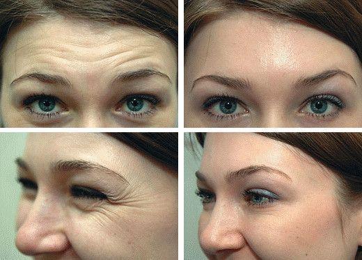 (1) Esiste una soluzione PRATICA e CONCRETA alternativa alla chirurgia per eliminare le machie dalla pelle?