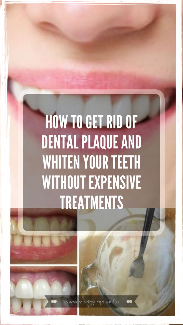 How To Get Rid Of Dental Plaque and Whiten Your Teeth
