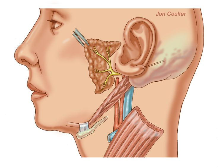 Opinion Cancer in facial nerves you