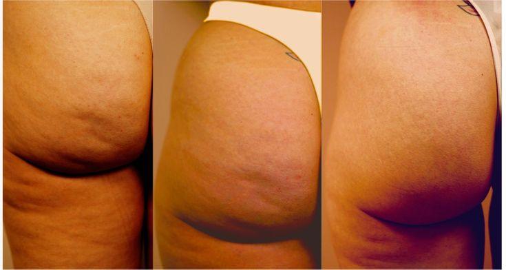 Cellulite Body Treatment I hate cellulite