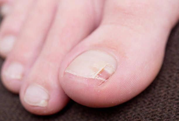 How To Get Rid Of Thick Yellow Toenails-Treatment For Fungal Toenail ...