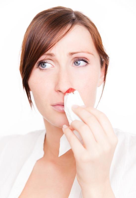 O que fazer no caso de uma hemorragia nasal. A hemorragia nasal (ou epistaxe) é o sangramento de uma ou ambas fossas nasais. Não se trata de um problema grave de saúde nem de uma doença, mas de um fato pontual que pode ocorrer com qualquer pesso...