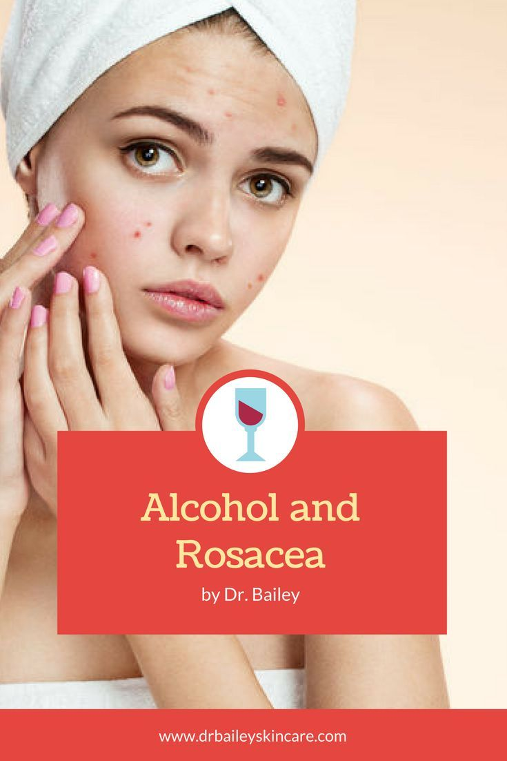 Does Alcohol And Wine Make Rosacea Worse Rosacea Alcohol Wine Making