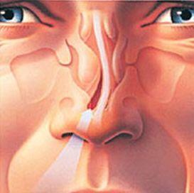 Όταν το διάφραγμα παρουσιάζει κάποια σκολίωση, δηλαδή είναι στραβό, ενδέχεται να δημιουργήσει πρόβλημα στην αναπνοή. Η σκολίωση του διαφράγματος οφείλεται συνήθως σε ατύχημα του παρελθόντος, λόγω του οποίου αυτό έσπασε ή μετακινήθηκε από τη θέση του. Όταν συμβεί κάτι τέτοιο δημιουργείται ένας στενός χώρος, που συνήθως αφορά ένα από τα δύο ρουθούνια, αλλά μπορεί να αφορά και στα δύο. Αυτή η κατάσταση δημιουργεί πρόβλημα στην κυκλοφορία του αέρα μέσα στην μύτη.