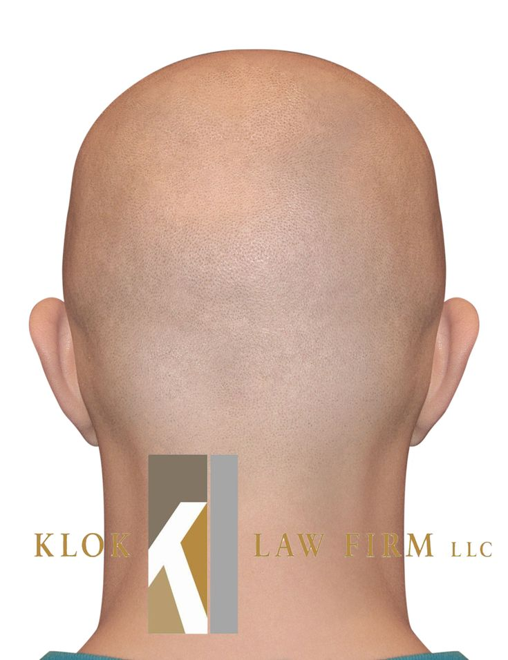 Legal tip do this as a fashion statement not to avoid a