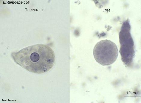 Intestinal Amebae- Subphylum: Sarcodina, Phylum: Sarcomastigophora. Entamoeba coli cyst and trophozoite