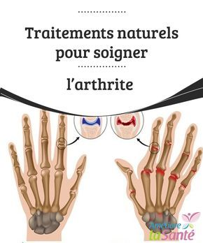 Traitements naturels pour soigner l'arthrite Soigner l'arthrite et la soulager avec des remèdes naturels, c'est possible ! Découvrez toutes les astuces pour vous débarrasser de ce mal très douloureux.