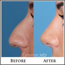 Rhinoplasty, sometimes referred to as a 'nose job,' involves making precise structural changes to the nose to create a more desirable shape and contour.