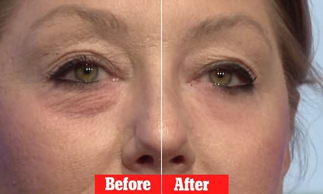 Miracle 'Botox' cream that claims to erase eye bags in 45 seconds