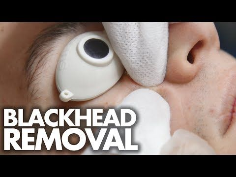(19) Guy Gets His First FACIAL w/ Blackhead Extractions (Beauty Trippin) - YouTube