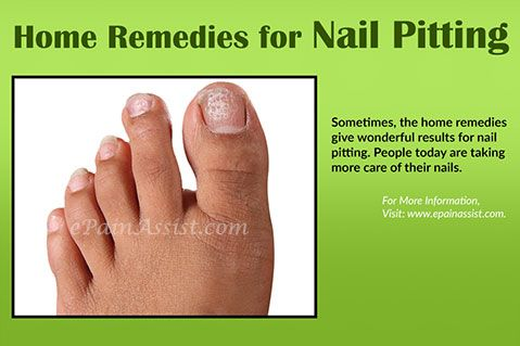 Home Remedies for Nail Pitting or Pitted Nails  Read: http://www.epainassist.com/skin/home-and-natural-remedies-for-nail-pitting-or-pitted-nails