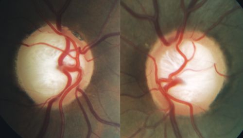 Review of Optometry® > Does Glaucoma Begin in the Brain?