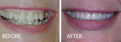 before and after photo of 6 month braces