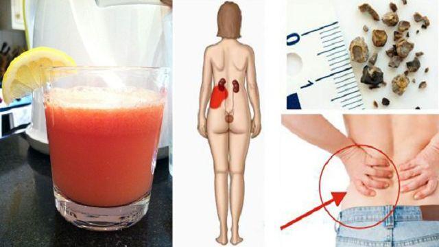 ¡Cómo hacer el jugo más poderoso que naturalmente elimina las piedras de riñón y cálculos biliares!
