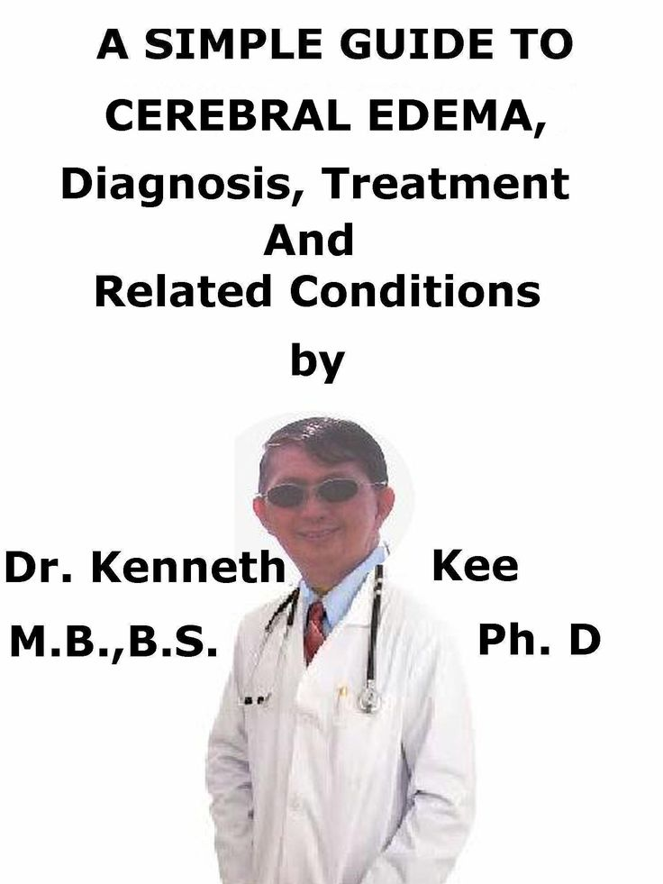 A Simple Guide To the Cerebral Edema , Diagnosis, Treatment And Related Conditions http://amazon.com/dp/B079P1PFTF