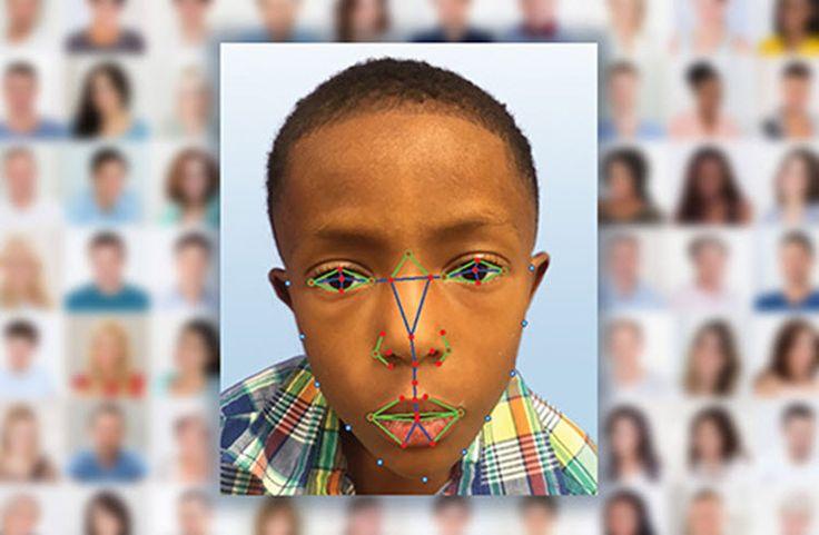 #Curiosidades #Reconocimiento_facial Utilizan el reconocimiento facial para detectar enfermedades genéticas