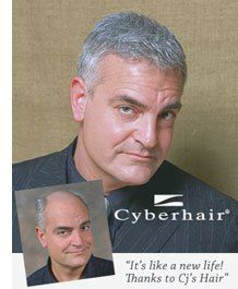 Cyberhair for Men Hair Replacement Hair Pieces Wigs Hair Loss #hair #loss, #wigs, #wig, #weave, #hair #piece, #hair #wigs, #toupee, #alopecia, #baldness, #trichotillomania, #balding, #nioxin, #hair #thinning, #thinning #hair, #loss #of #hair, #losing #hair, #receding #hairline, #hair #loss #treatment, #wigs #human, #front #lace #wigs, #causes #hair #loss, #women #hair #loss, #loss #of #hair, #female #hair #loss, #natural #hair #loss, #hair #restoration, #hair #replacement, #hair #products…