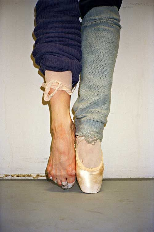 """Ballerina's Toes - not s beautiful.  several icky pictures here.  Truly, it is as quoted """"why I do I dance is like asking why do I breathe"""".  They do it because they must"""