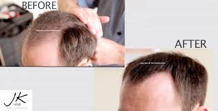 Har Voks| An Amazing Hair Growth Guarantee!! It Promote regrowth for thicker, stronger, shinier hair, it Nourish and condition the hair, Thicken & Strengthen hair, Prevent Hair Loss, Fortify & Protect hair and you will see results within only a few days. hair loss cure hair loss in women hair loss causes hair loss treatment for women hair loss after pregnancy hair loss from stress
