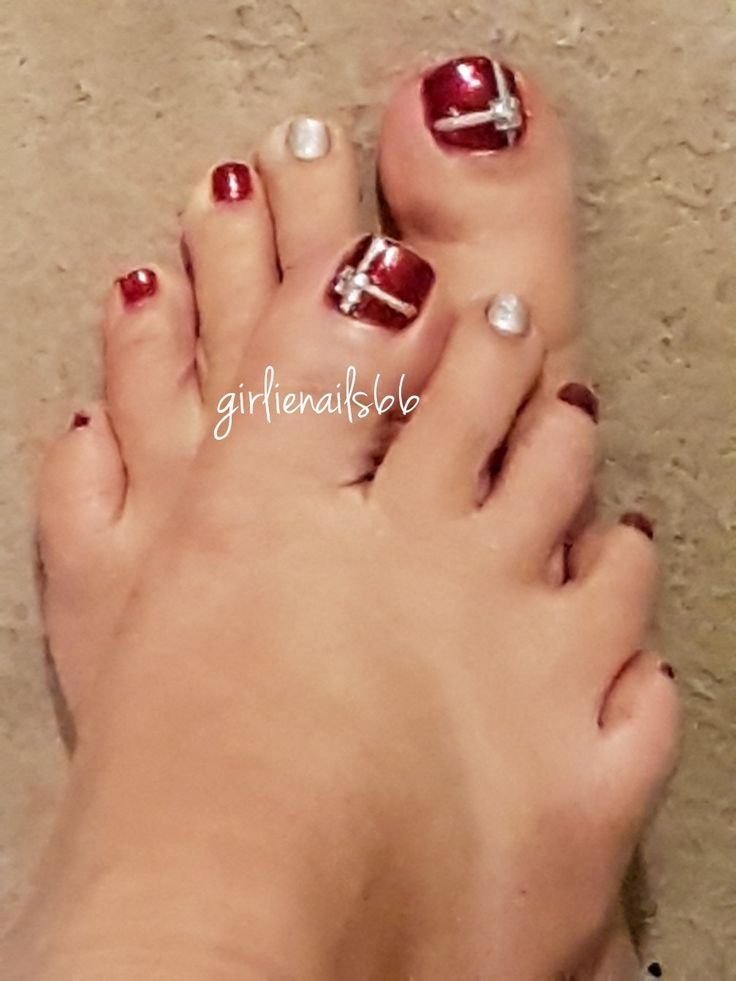 Christmas present toe nails