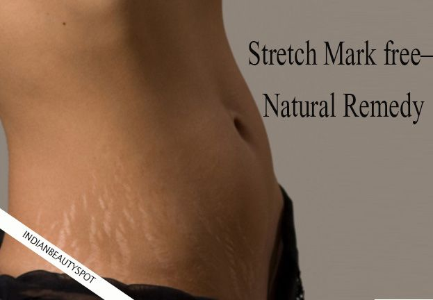 Stretch marks are unwanted marks that are triggered due to weight gain or weight lose. ...