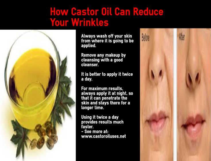 How to use castor oil to reduce your wrinkles and fine lines. I've been using castor oil on my facial lines for the past year and they have dramatically reduced! #skin #naturalremedy #castor oil