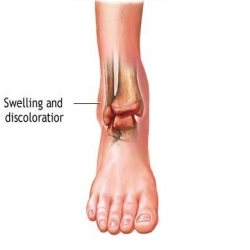 Swollen Ankles Treatment