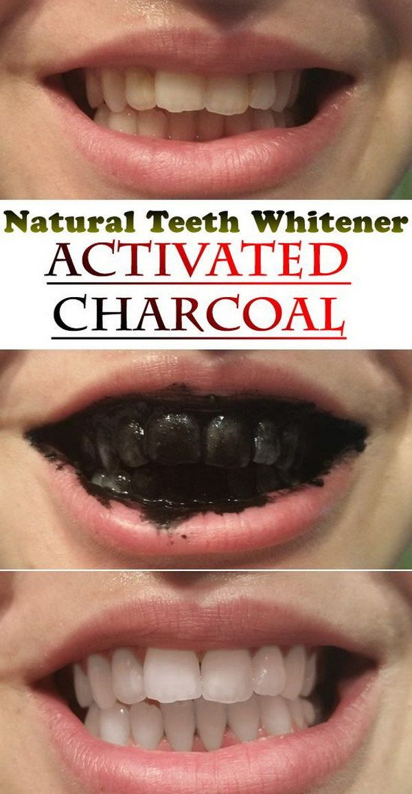 Natural Teeth Whitener with Activated Charcoal.