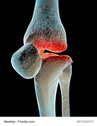 If you have cracking in your knees, it is possible you have a condition known as Chondromalacia Patellae.  In my video here https://youtu.be/hGCY4gRCsUI I will describe to you what this condition is and what you can do about it.  Remember to Thumb Up the video if you like it!