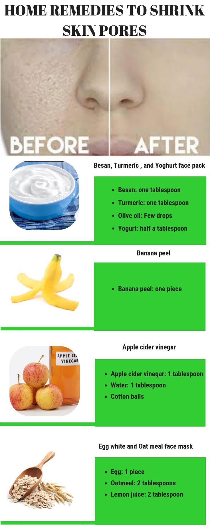Top 3 home remedies to shrink skin pores