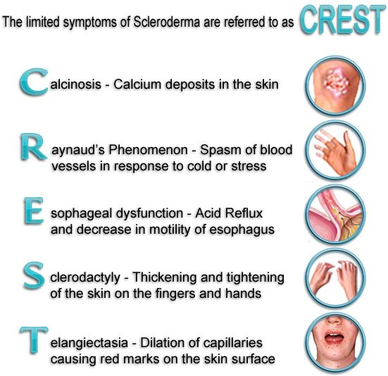 CREST Syndrome - a form of scleroderma that is a combination of calcinosis, Raynaud's phenomenon, esophageal motility disorders, sclerodactyly, and telangiectasia. Abbreviation for Calcinosis, Raynaud's Phenomenon, Esophageal Dysfunction, Sclerodactyly, and Telangiectasis. CREST syndrome is a disease of skin and blood vessels and, in severe cases, the lungs, digestive tract, or heart. To be diagnosed with CREST, an individual must display at least two of the five symptoms...
