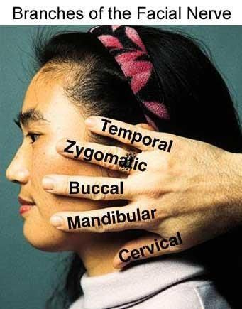 The 5 Branches of the Facial Nerve: Temporal, Zygomatic, Buccal, Mandibular, & Cervical.  Remember:  To Zanzibar By Motor Car  (or)  Two Zebras Bit My Cat  Are you studying for a DANB or dental assisting exam? www.DentalAssistantStudy.com