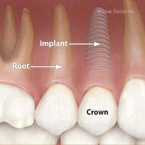 How Dental Implants Are Better Than Dentures  Dental implants are a great selection for many different reasons. It can be certainly be an as someone has lost a front tooth and wishes to replace the one tooth and not have a bridge to keep on. It can go as complex as full mouth replacement of teeth with implant veneers. Some teeth are just so unstable that dental implants cost makes total sense.  First will be running that the cosmetic implant treatment isnt something that many dentists cause…
