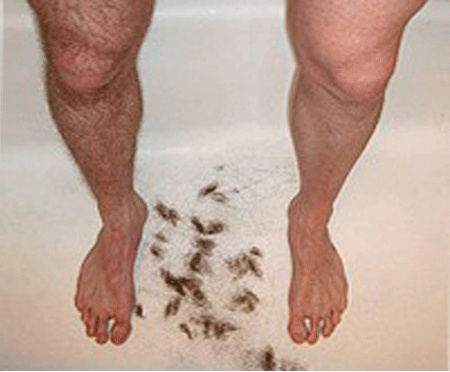 Is it in your to do list for the week. Head to @CoLazUK and get permanent solution for unwanted hairs.